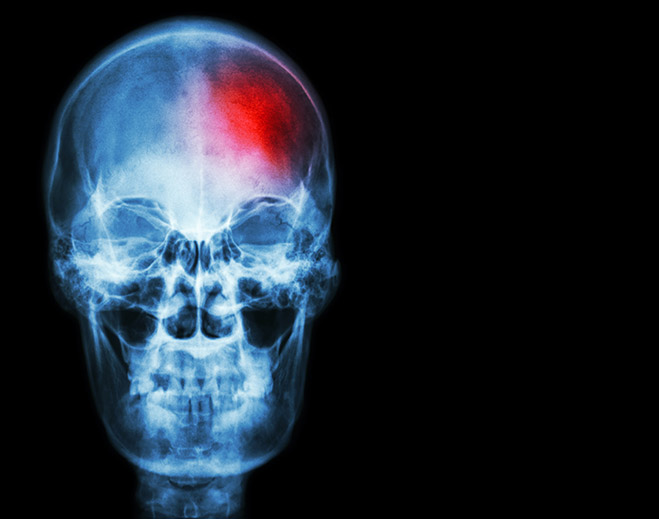 Image of skull with small red dot indicating mini stroke